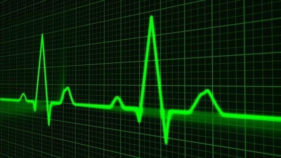 Heart muscle disease patients benefit from defibrillator https://medicalxpress.com/news/2017-09-heart-muscle-disease-patients-benefit.html?utm_campaign=crowdfire&utm_content=crowdfire&utm_medium=social&utm_source=pinterest