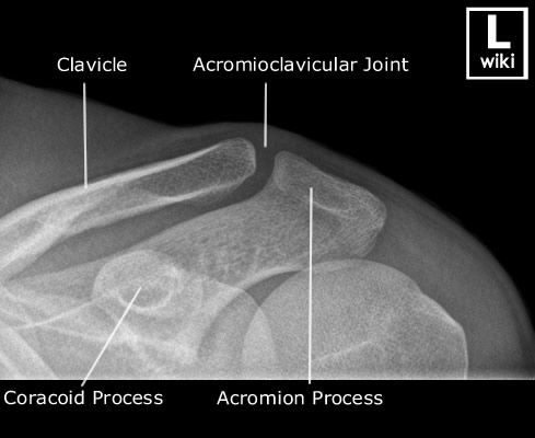 Adult - Acromioclavicular Joint - AP