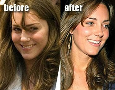 Has Kate Had Cosmetic Surgery Many People Think That Kate