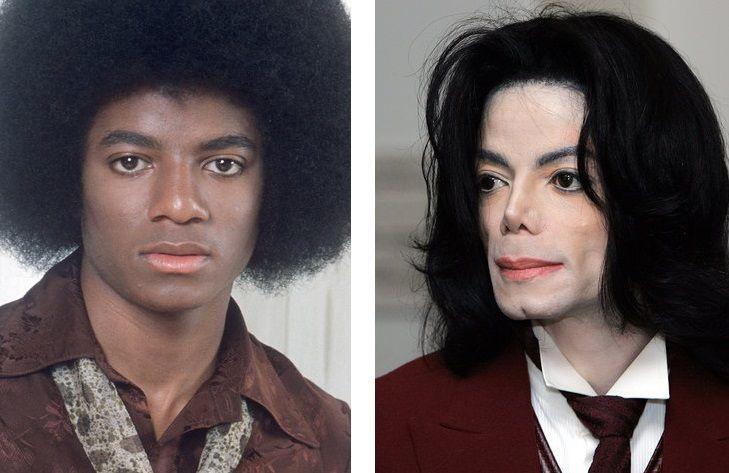13 Most Expensive Celebrity Plastic Surgeries - Michael ...