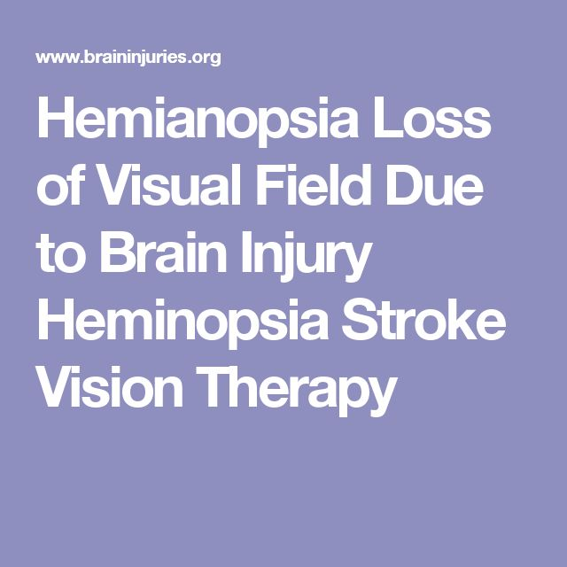 Hemianopsia Loss of Visual Field Due to Brain Injury Heminopsia Stroke Vision Therapy