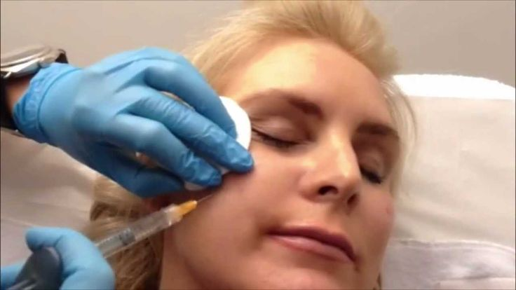 Voluma Cheek Filler Enhancement at Tracey Bell