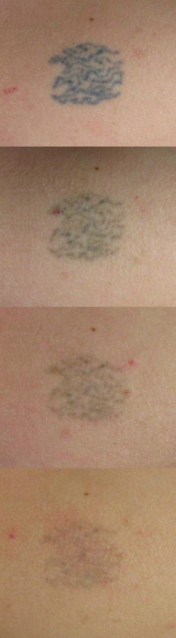 Tattoo after 4 weeks. Lemon + this ingredient can take it off. Learn more about laserless tattoo removal here: http://laserlesstattooremoval.tattooroman.com #tattoo #tattoos #cover_up_tattoos #tattoo_cover_up #tattoo_removal #tattoos_for_women #temporary_tattoos #laser_tattoo_removal #tattoo_removal_cream #tattoo_removal_before_after #home_tattoo_removal #remove_tattoo_at_home #removal_cream #permanent_makeup #cosmetic_tattooing #permanent_makeup_remove #cosmetic_tattooing_remove