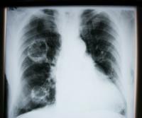 Radiografía de un edema pulmonar
