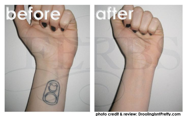 Need to cover tattoos for various occasions check out our for Tattoo bandage removal