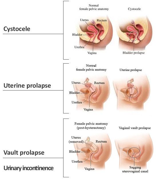 Types Of Pelvic Organ Prolapse Macobgyn Urogyn Prolapse