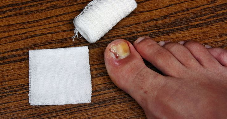 Waking up to a throbbing ingrown toenail with a swollen toe can be extremely painful! Here is how you can get rid of them naturally.