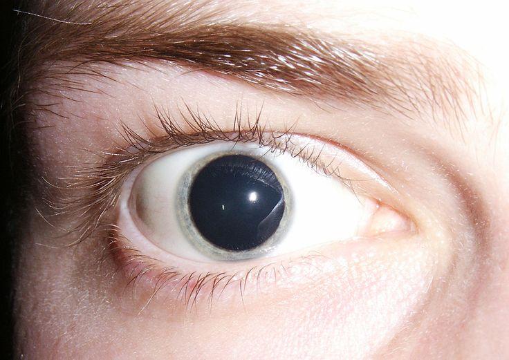 Mydriase prononcée 2006 - Pupila - Wikipedia, la enciclopedia libre