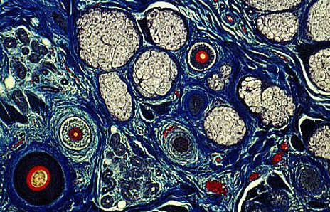 Skin cells look like a Van Gogh painting.