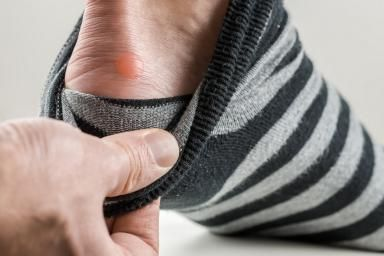 7 Strategies to Prevent Blisters: Blister on Heel
