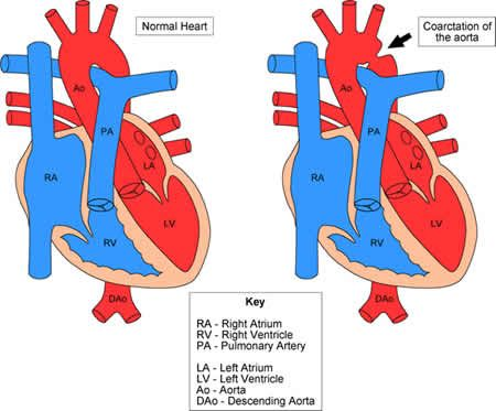 Coarctation of the Aorta - high BP in upper extremities, low BP in lower extremities. No chest pain on exercise