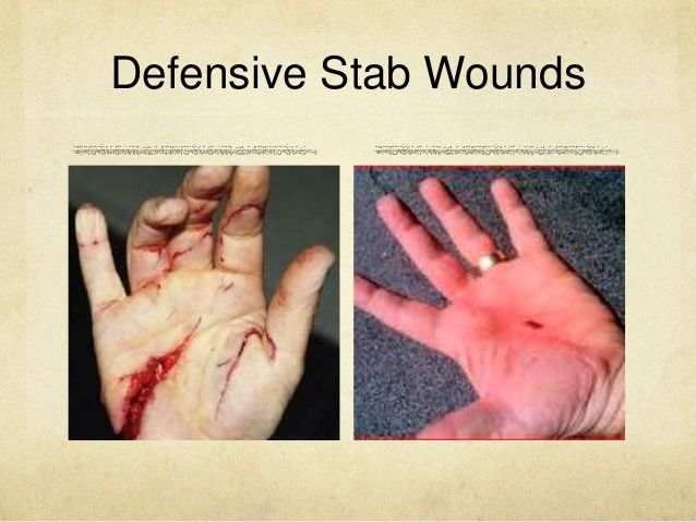 wounds that can not be stitched essay However, wounds that are stitched often scar as they heal, leaving irregular, discolored marks on the surface of the skin although not all scars are preventable, you can take steps to minimize scar tissue and improve the appearance of your skin.