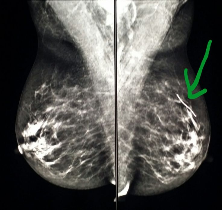 #Normal #Mammogram shows a marker where the #patient has a ...