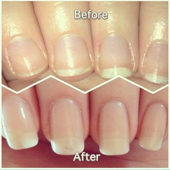 This DIY nail soak for longer, stronger nails combines orange juice, garlic, and olive oil to give you incredible nails FAST!