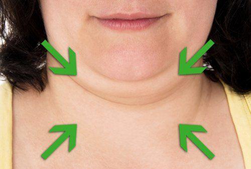Consejos y remedios para reducir tu papada - Mejor con Salud