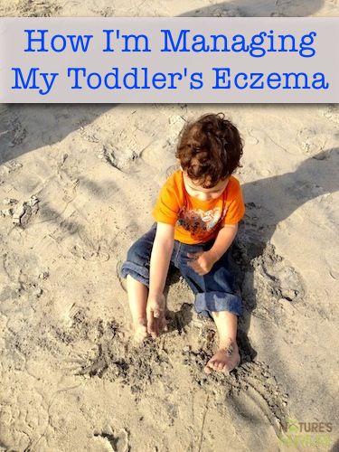How I'm Managing My Toddler's Eczema - Nature's Nurture