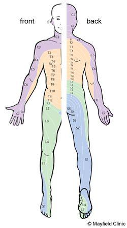 Figure 10, Illustration of dermatome pattern