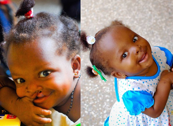 Little Yaa Sami before and after cleft lip surgery in Accra, Ghana!