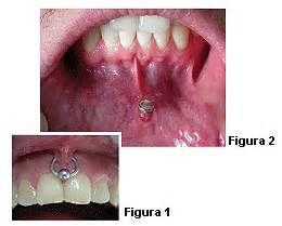 Pesquisa Como remover um piercing labial. Vistas 162324.