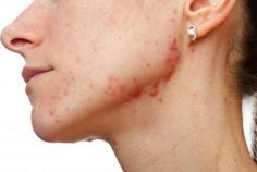 How to get rid of pimple scabs overnight? Here we have listed the best 36 home remedies for acne scabs that will help to speed up the healing process.