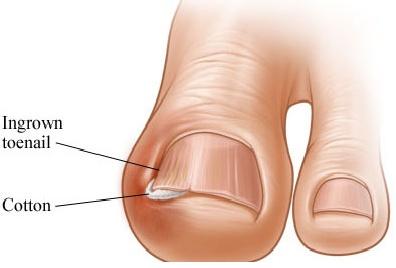 Ingrown Toe