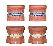 Dental Braces - Dental braces are the most commonly utilized fixed appliance in orthodontics and are used to align teeth, improve dental health as well as enhance a patient's bite.   http://www.topdentist-ny.com/dental-braces