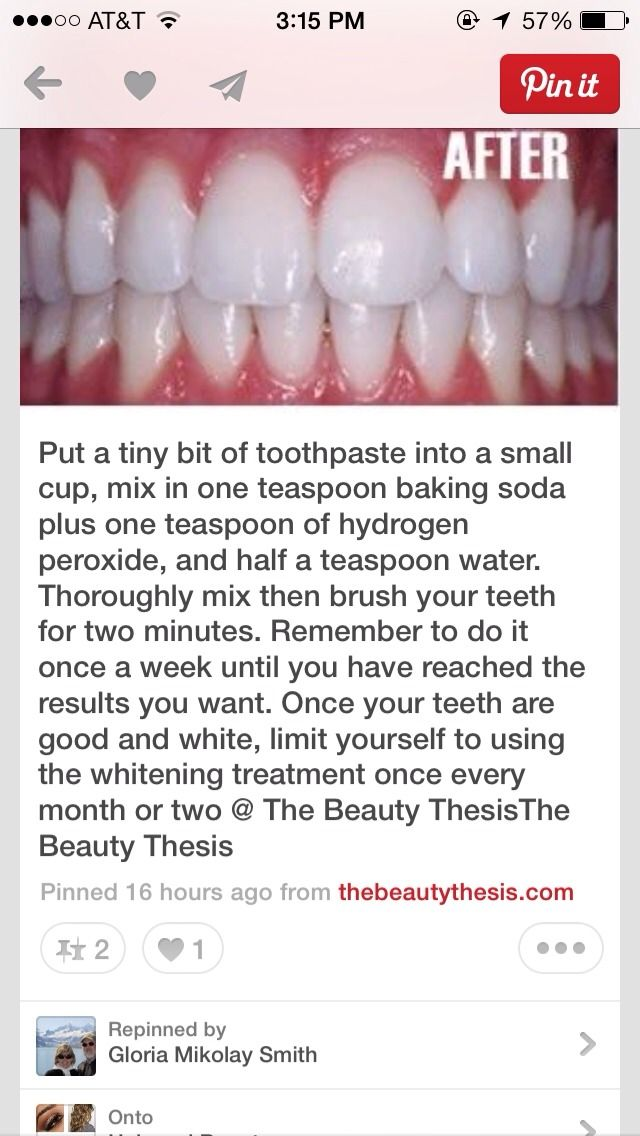How To Get White Teeth Fast - Easy -STRONG