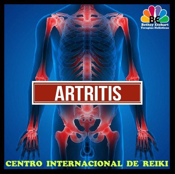 ► LA ARTRITIS ~ Desencriptando la enfermedad ~  Se define la artritis como la inflamación de una articulación. Puede afectar cada una de las partes del sistema locomotor humano: los huesos, los ligamentos, los tendones o los músculos. Se caracteriza por inflamación, rigidez muscular y dolor.