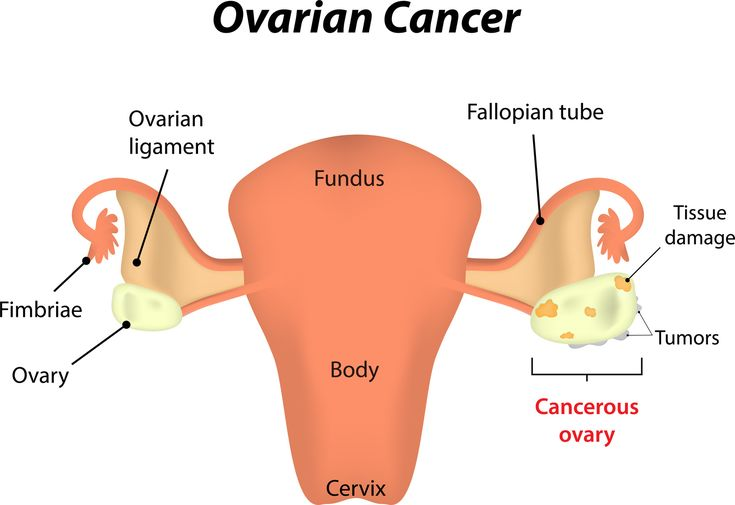 can't lose weight ovarian cancer