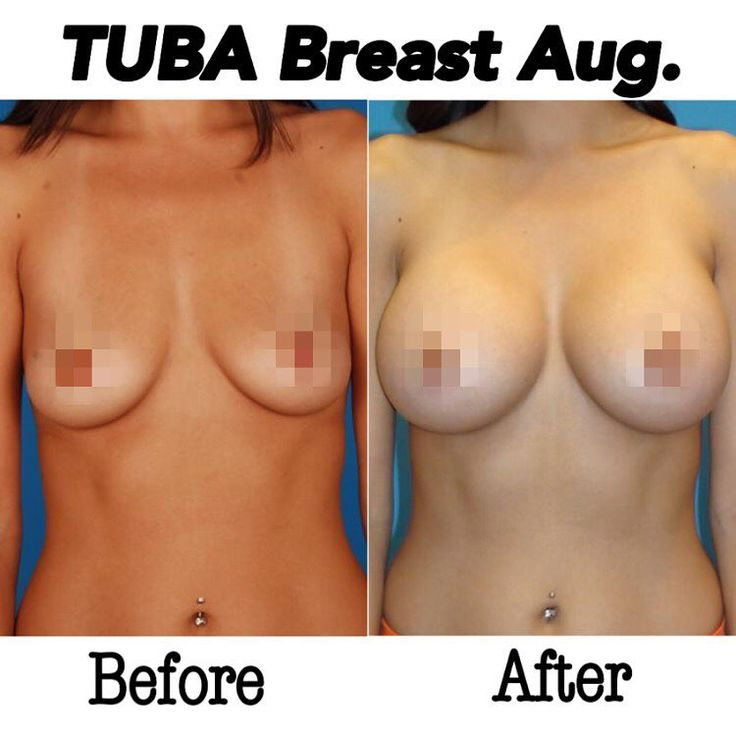Before and after TUBA breast augmentation. Saline breast implants.
