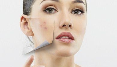 De verzorging van een vette huid - FemNa40