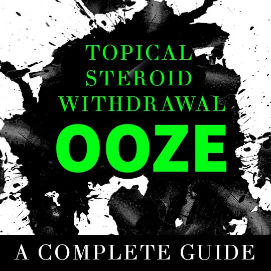 Topical Steroid Withdrawal Ooze: A Complete Guide.  #TopicalSteroidWithdrawal