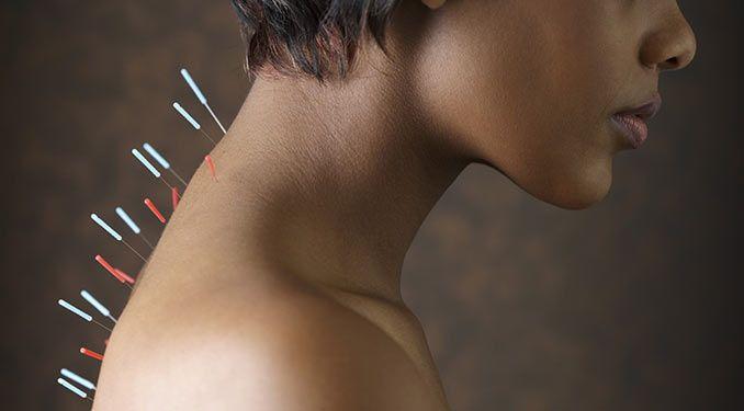 Sai cos'è l'Agopuntura? Scopri di più >> http://ow.ly/UPUlM   #agopuntura #medicinaAlternativa #salute #noene