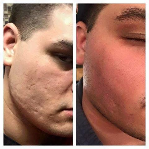 Look at this before and after pictures. This is the results of using Rodan+Fields Micro-Dermabrasion Stick only 21 days and the AMP MD Roller with the Night Renewing Serum for only ONE Week!!!!!   Do you or someone you know have post-acne scars or similar?  awilliams64.myrandf.com