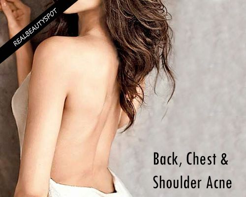 how to get acne off your back and shoulders
