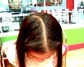 Dry Scalp Not Dandruff | Severe dandruff can actually be a symptom of something a lot more ...