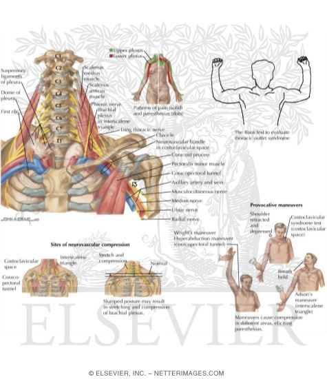 Easy Medical Terminology New Muscular System Reference: Netter Medical Illustrations