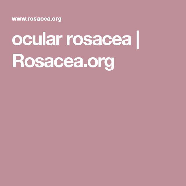 ocular rosacea | Rosacea.org