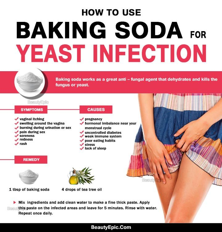 How To Use Baking Soda For Yeast Infection  Yeast -2010