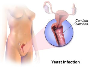 What is a vaginal yeast infection?
