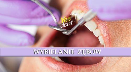 #Stomatolog #Wrocław - nowoczesne wybielanie zębów. #yesdent #wybielanie #zębów