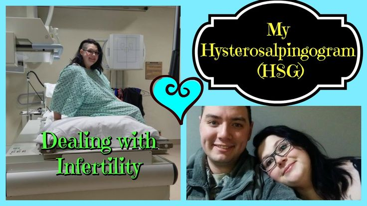 Details Of My Hysterosalpingogram HSG Test For Infertility!