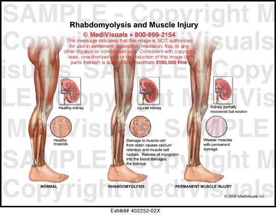 49 best images about rhabdomyolysis on pinterest | exercise, php, Skeleton