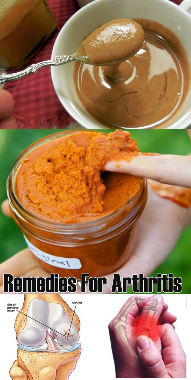 10 Best Home Remedies for Arthritis and joint pain...