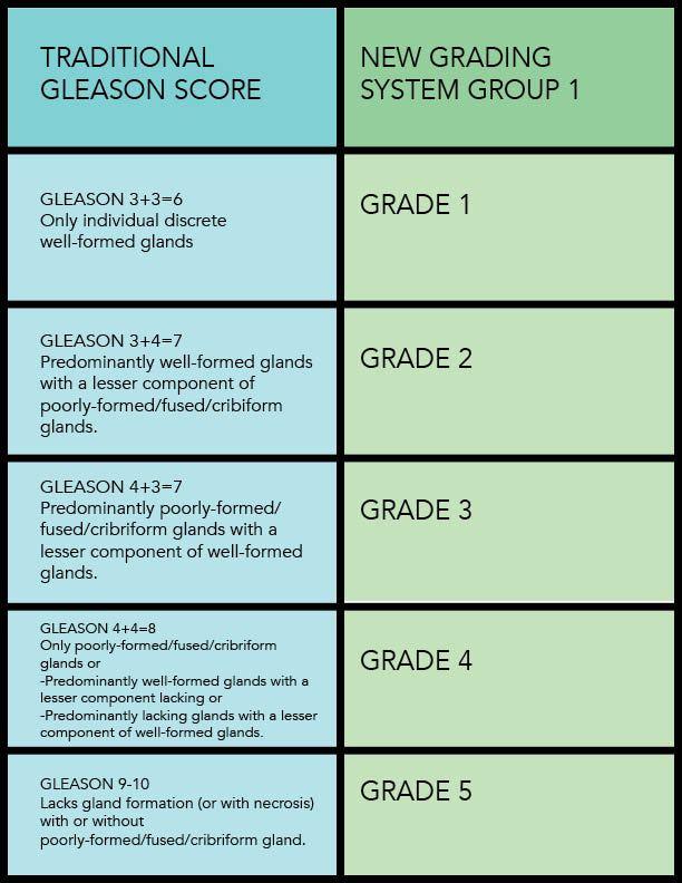adenocarcinoma de prostata grado 3+3 de gleason