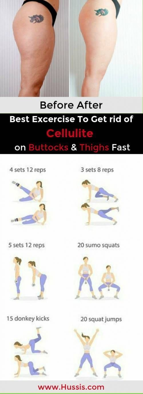 7 Best Exercises Which Help You to Get rid of Cellulite on Your Buttocks and Thi