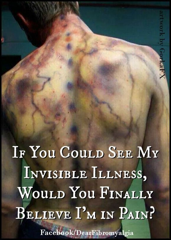 """If you could see my invisible illness, would you finally believe I'm in pain?"" #chronicfatigueremedies"