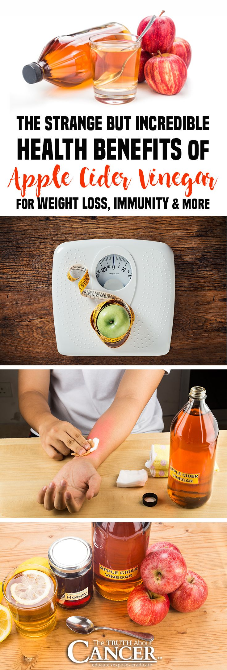 Discover the incredible health benefits of apple cider vinegar for weight loss, immunity, antioxidants, and More! Click through to check it out as Dr. David Jockers also discusses the 12 unique ways to use apple cider vinegar like disinfect wounds, treat acne, remove warts, energize and detoxify, etc. Please re-pin. Together we'll educate the world about healthy lifestyle!
