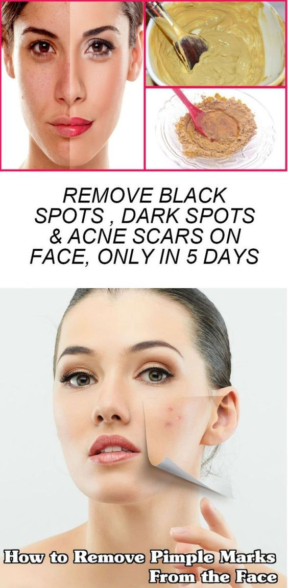 Remove Black Spots Dark Spots & Acne Scars on Face Only In 5 Days
