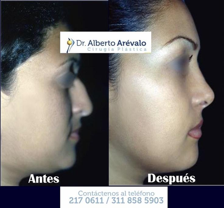 Cirugía de Nariz o Rinoplastia por el Dr Alberto Arévalo cirujano certificado por la SCCP. WEB: http://www.doctorarevalo.com/home.html ****Trabajando por una Cirugía Plastica segura y de calidad***